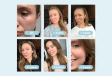 Лазерная шлифовка лица: преимущества