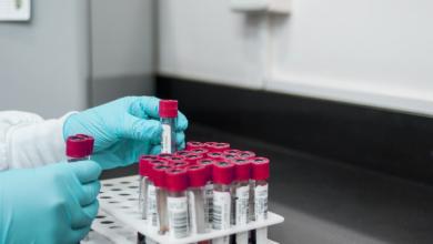 Лабораторне обладнання необхідне для дослідницького центра